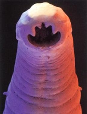 hookworm.jpg