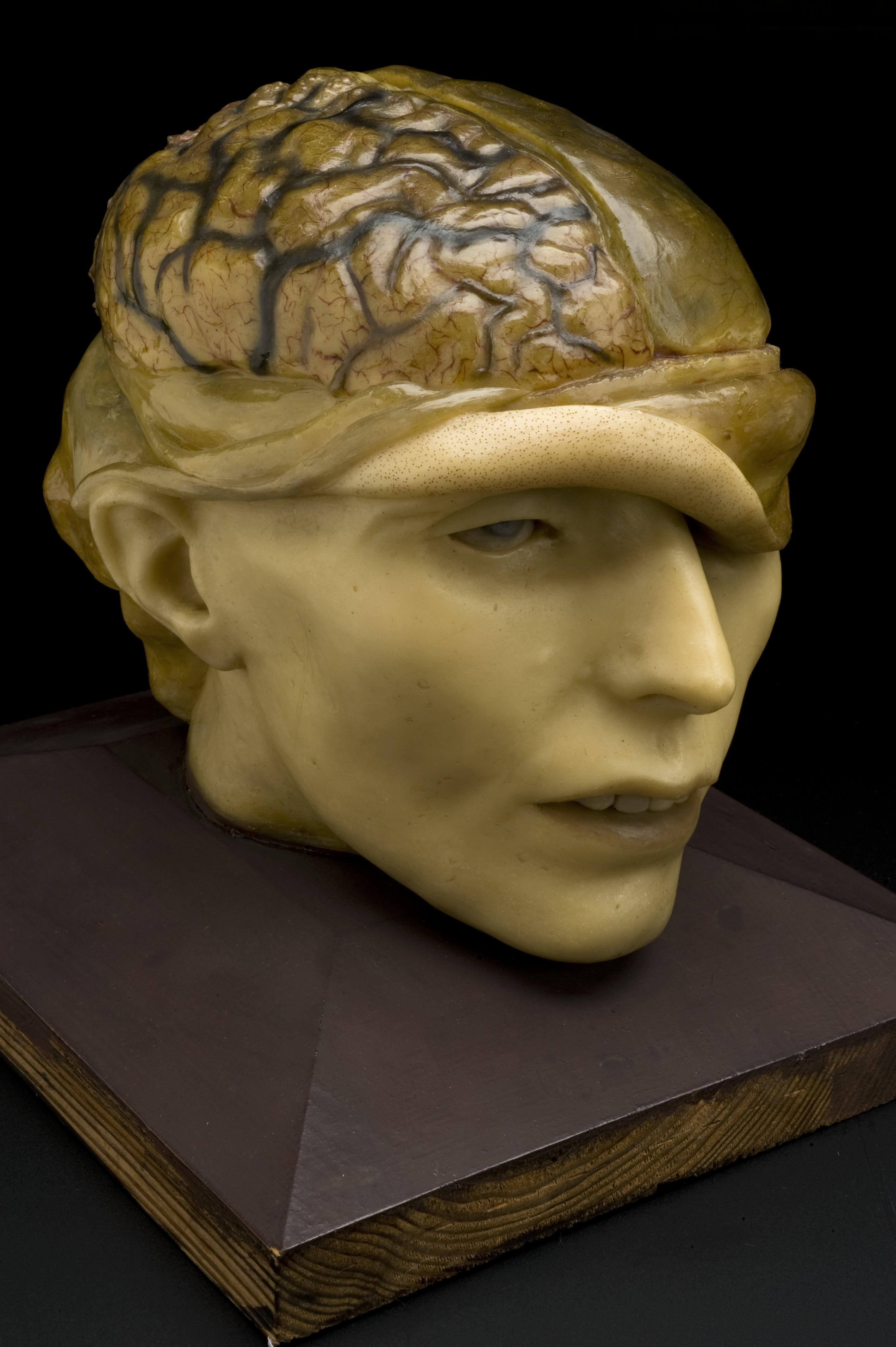 Wax_anatomical_model_of_human_head,_Europe_Wellcome_L0059770.jpg