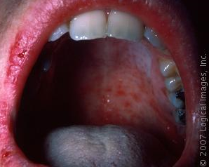 measles%20mouth.png