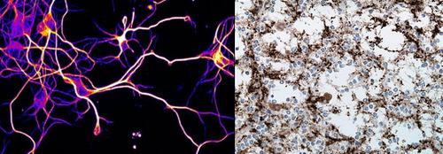 neuronsandtumor